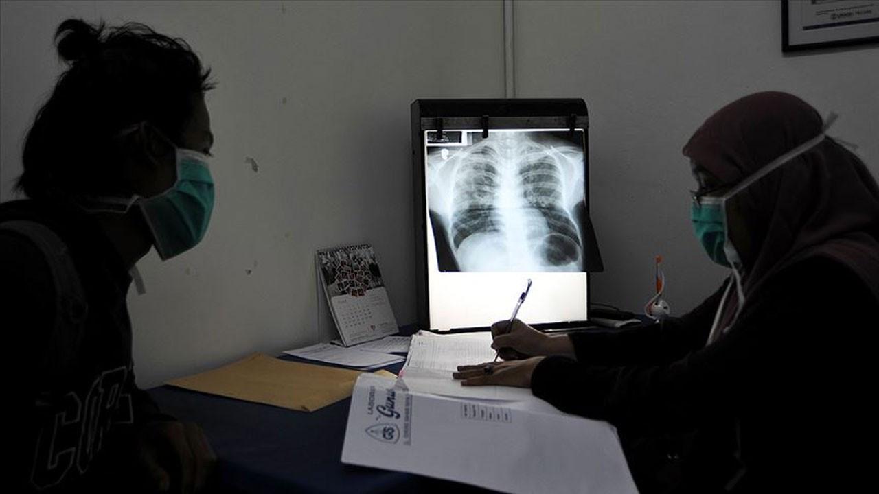 DSÖ: COVID-19 tüberküloz ölümlerini ilk defa artırdı